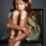 Девушка Витилиго, © Александр Виноградов, Открытие года, Победитель в категории «Люди», непрофессионал, Фотопремия IPA Россия